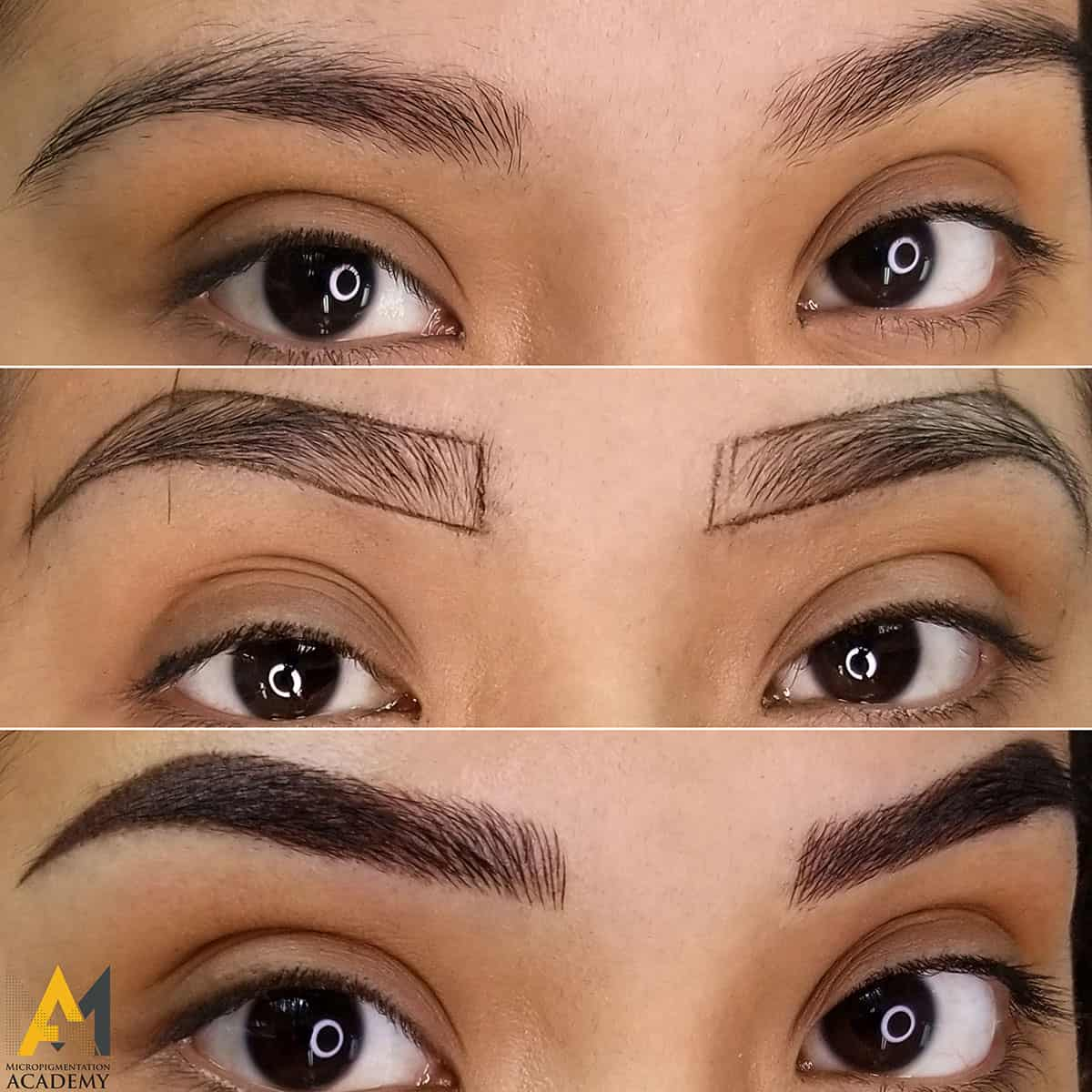 fusion brows treatment example
